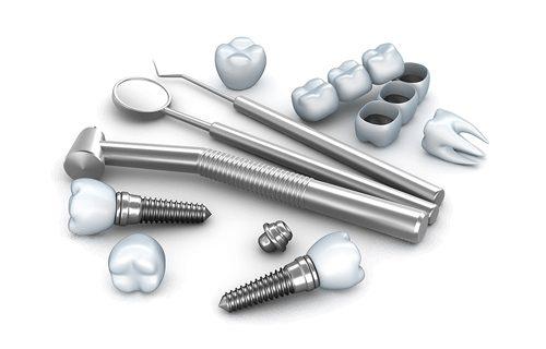 Имплантация зубов: частые вопросы