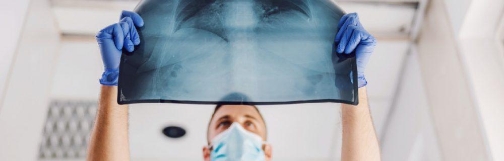 Ученые выяснили, чем коронавирусная пневмония отличается от «обычной»