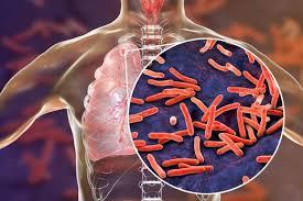 Туберкулез в период пандемии может проснуться