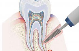 Как удаляют кисту зуба