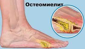 Остеомиелит, как воспаление костного мозга