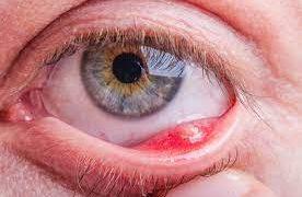 Ячмень — симптомы, лечение, профилактика