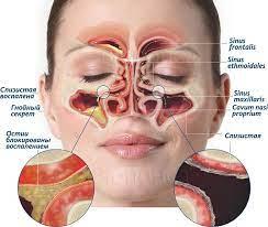Риносинусит может нарушать функциональные связи в головном мозге