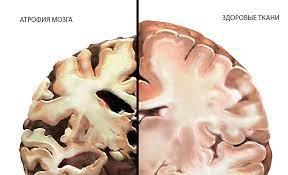 Исследователи предложили лечить паркинсонизм с помощью нового средства