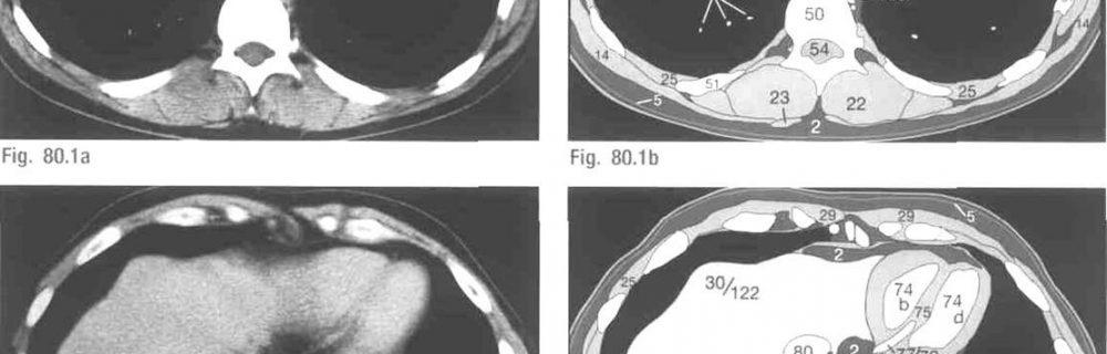 Особенности КТ грудной клетки