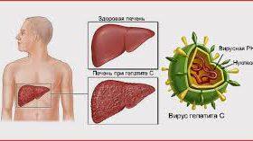 Гепатит С – распространение и опасность вируса