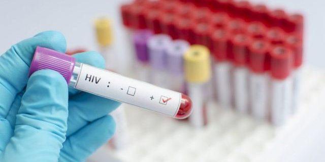 Найдена потенциальная основа для вакцины против ВИЧ