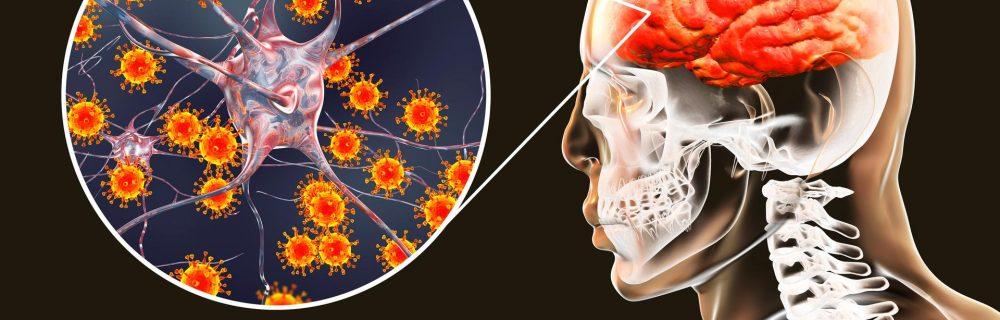 Бактериальный менингит: его причины и опасности