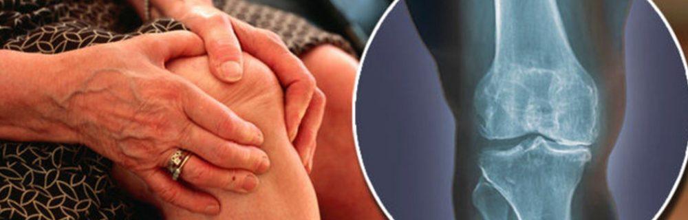 Симптомы и лечение остеоартрита