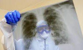 В легких умерших от COVID-19 пациентов обнаружили высокую вирусную нагрузку