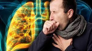 Названа неожиданная причина пневмонии