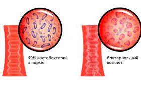 6 вопросов о бактериальном вагинозе