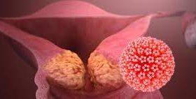 50% мужчин инфицированы вирусом, опасным для женщин