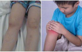 Инфекции в костях и суставах детей: важные нюансы