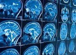 Гантенерумаб от болезни Альцгеймера получил статус прорывной терапии